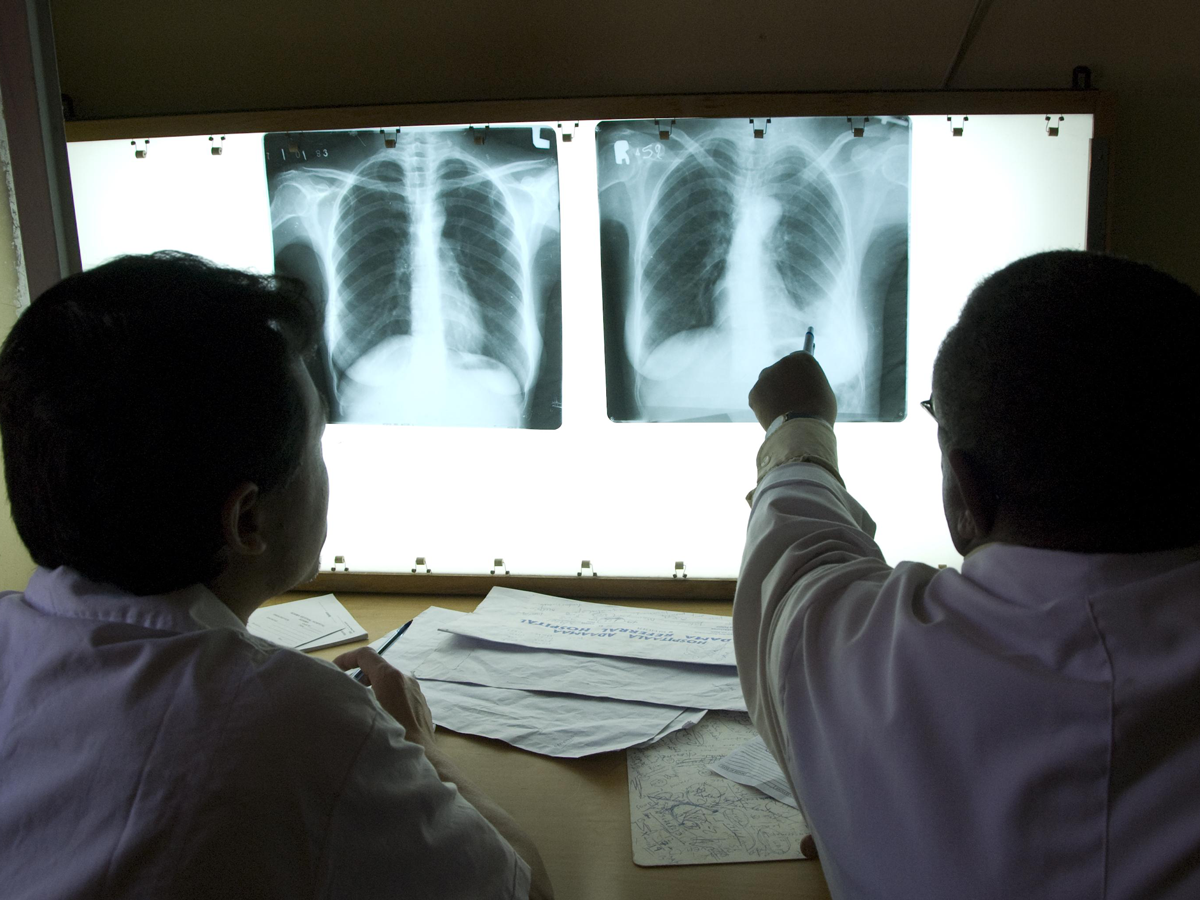 chest x-rays for tuberculosis